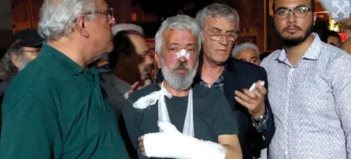 İki haftada beş gazeteci saldırıya uğradı